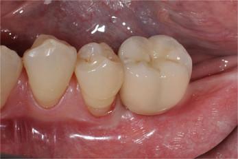 Zahnimplantatate