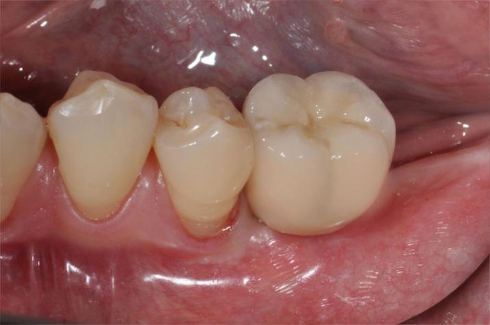 Fertige Krone auf Implantat
